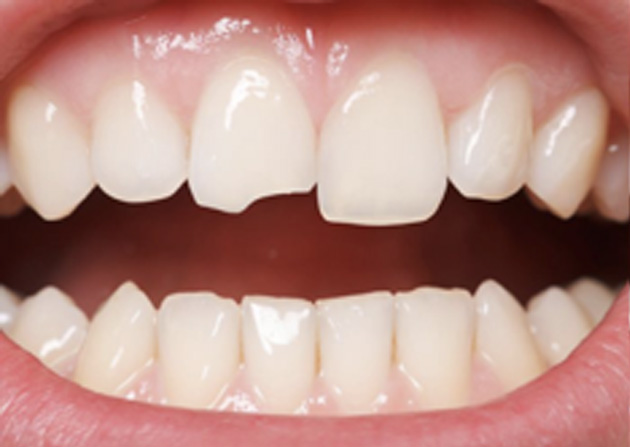Cosmetic Bonding  - Troy Dental, Shorewood Dentist
