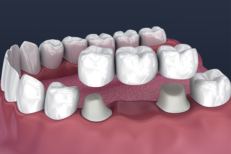 Crowns and Bridges, Inlays and Onlays  - Troy Dental, Shorewood Dentist