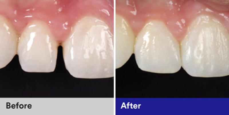 BioClear Diastema Closure and Black Triangle Closure  - Troy Dental, Shorewood Dentist