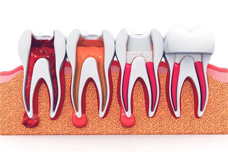 Root Canal Therapy  - Troy Dental, Shorewood Dentist