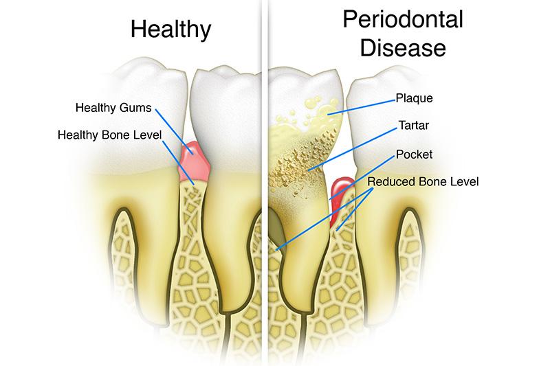 Scaling & Root Planings (Deep Cleanings)  - Troy Dental, Shorewood Dentist
