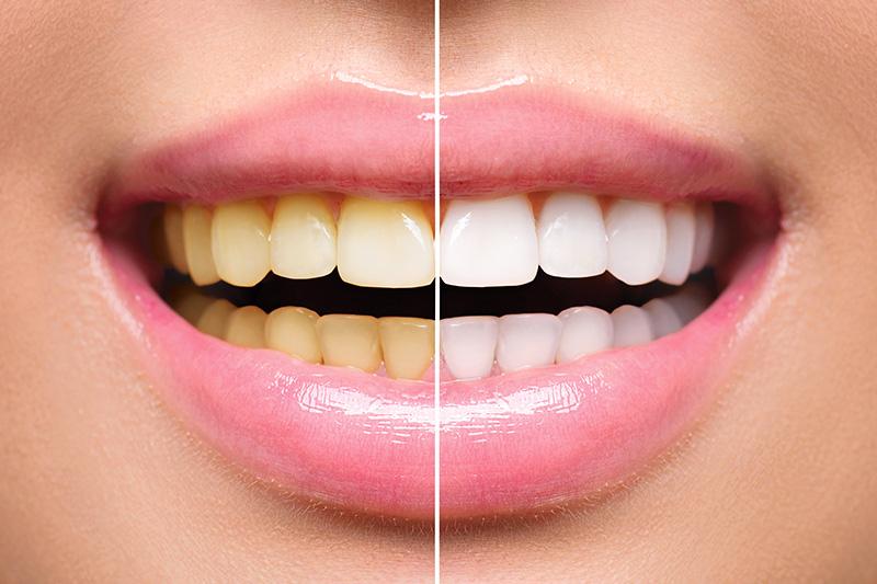 Teeth Whitening - Troy Dental, Shorewood Dentist