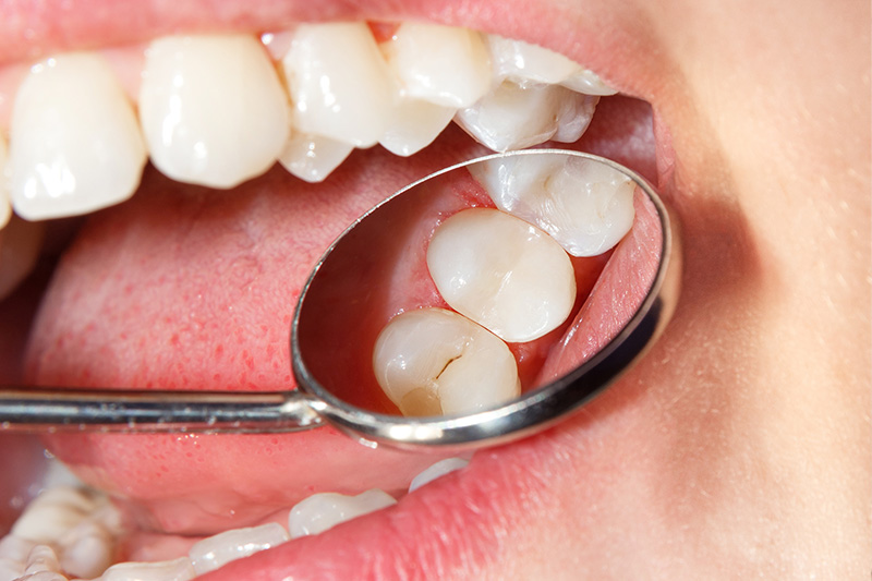 Tooth Colored Composite Fillings  - Troy Dental, Shorewood Dentist