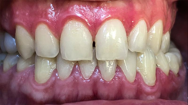Veneers  - Troy Dental, Shorewood Dentist