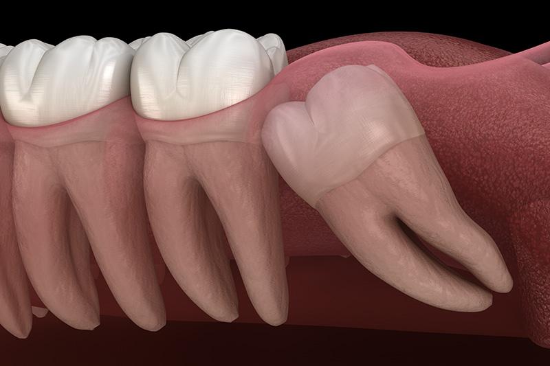 Wisdom Teeth Extractions (with Sedation)  - Troy Dental, Shorewood Dentist